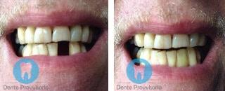 dente finto