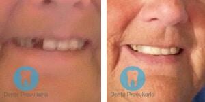 esperienza dente provvisorio