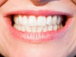 Denti finti provvisori in pochi semplici passi!