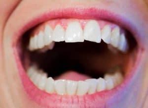 sostituzione dente mancante